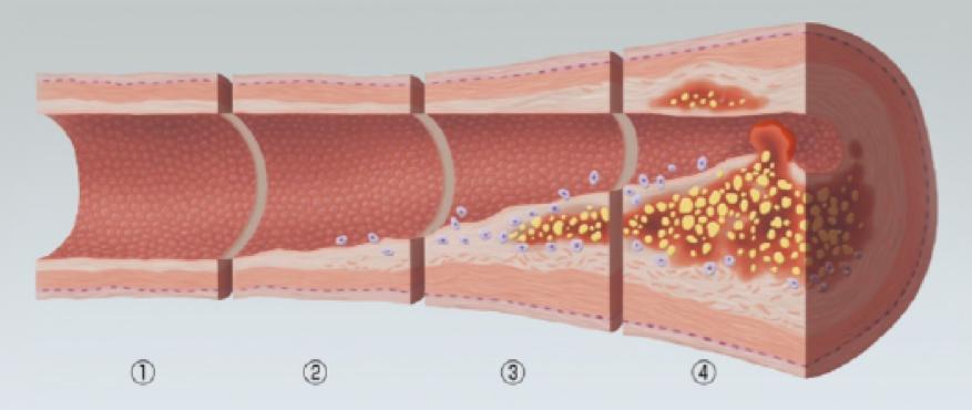 動脈硬化のイラスト