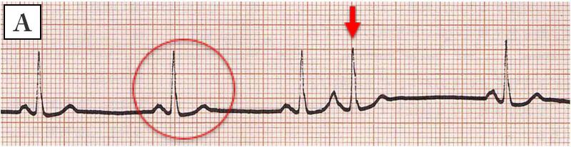 外 上質 収縮 期 上室性期外収縮とは?原因や症状・心電図での検査方法は?